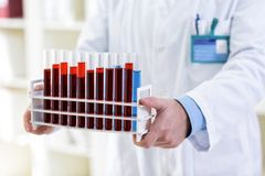 Young lab technician holding tubes at clinic. Close up Stock Images
