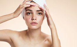 Young lady squeezing her pimples, removing pimple from her face. Woman skin care concept Royalty Free Stock Images