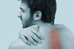 After Scoliosis Operation Royalty Free Stock Photo