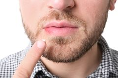 Young man applying cold sore cream on lips. Against white background, closeup Royalty Free Stock Photos