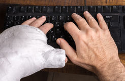 Young man with arm cast typing on a keyboard Royalty Free Stock Photo