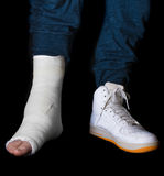 Young man with a broken ankle and a leg cast Royalty Free Stock Image
