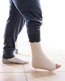 Young man with a broken ankle and a leg cast Royalty Free Stock Photo