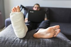 Man with a broken leg is surfing the internet. Young man with a broken leg is sitting on the sofa at home stock images