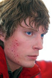 Young man with bruises on a face Royalty Free Stock Photo