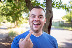 Young man with a chipped tooth. Young man in a blue T-shirt with a chipped tooth royalty free stock photography