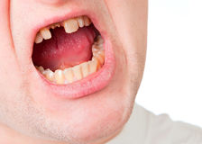 Young man face with broken tooth Stock Images