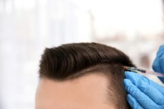 Young man with hair loss problem receiving injection royalty free stock photo