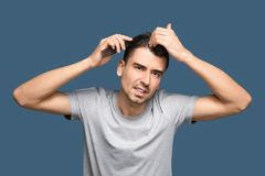 Young man with hair loss problem. On color background royalty free stock photo