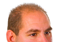 Young man with hair problem Stock Photo
