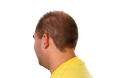 Young man with hair problem Stock Images