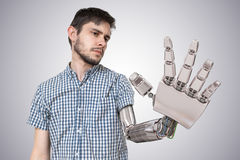 Young man have robotic hand as a replacement for his hand. 3D rendered illustration of hand.  Royalty Free Stock Image