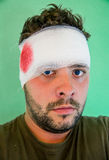 Young man with head injury. Young caucasian man with forehead bandage and red stains. Head injury royalty free stock image