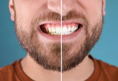 Young man with healthy teeth smiling on color background stock images