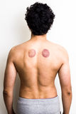 Young man with marks from cupping therapy. Rear view of young multiracial man showing marks from cupping therapy on his back Stock Image