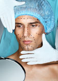 Young man patient with perforation lines on his face before plastic surgery operation. Stock Images