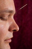 A young man receives facial acupuncture. A young man has acupuncture treatment on his forehead stock images