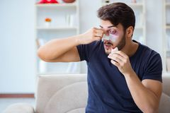 Young man recovering healing at home after plastic surgery nose Royalty Free Stock Photo