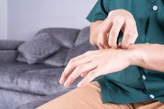 Young man scratching his hand while sitting on sofa at home. Healthcare medical or daily life concept