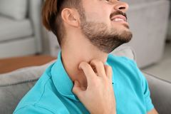 Young man scratching neck. Annoying itch. Young man scratching neck at home, closeup. Annoying itch stock photography