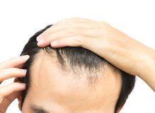Young man serious hair loss problem for hair loss concept stock images