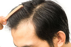 Young man serious hair loss problem for hair loss concept Royalty Free Stock Images