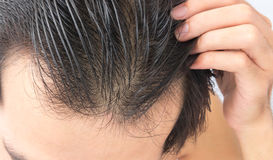 Young man serious hair loss problem for hair loss concept Stock Image