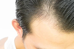 Young man serious hair loss problem for hair loss concept. Young man serious hair loss problem for health care shampoo land beauty product concept Stock Photo
