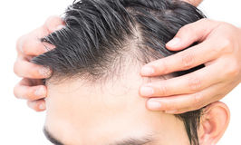 Young man serious hair loss problem for hair loss concept Stock Photo