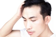 Young man serious hair loss problem for health care medical and shampoo product concept royalty free stock photography