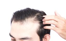 Young man serious hair loss problem for health care medical and. Shampoo product concept Royalty Free Stock Photos