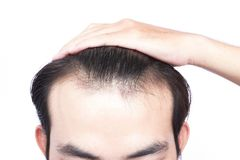 Young man serious hair loss problem for health care medical and. Shampoo product concept Royalty Free Stock Image