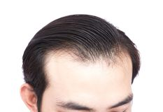 Young man serious hair loss problem for health care medical and. Shampoo product concept Royalty Free Stock Photo