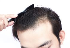 Young man serious hair loss problem for health care medical and. Shampoo product concept Stock Photos