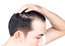 Young man serious hair loss problem for health care medical and shampoo product concept royalty free stock photo