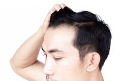Young man serious hair loss problem for health care medical and shampoo product concept stock photography