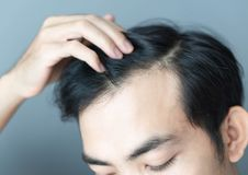 Young man serious hair loss problem for health care medical and shampoo product concept royalty free stock images
