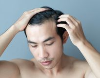 Young man serious hair loss problem for health care medical and shampoo product concept royalty free stock image