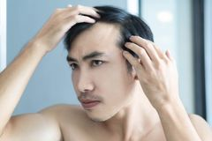 Young man serious hair loss problem for health care medical and shampoo product concept stock images