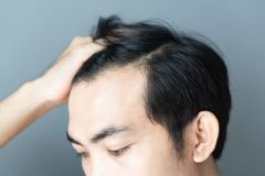 Young man serious hair loss problem for health care medical and shampoo product concept royalty free stock photos