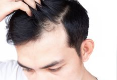 Young man serious hair loss problem for health care medical and shampoo product concept stock photos