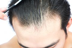 Young man serious hair loss problem for health care medical and. Shampoo product concept Stock Photo