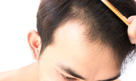 Young man serious hair loss problem for health care shampoo and stock images