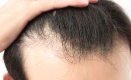 Young man serious hair loss problem for health care shampoo and Royalty Free Stock Photography