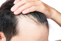 Young man serious hair loss problem for health care shampoo and stock image
