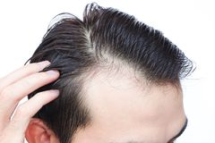 Young man serious hair loss problem for health care shampoo and. Beauty product concept Stock Images