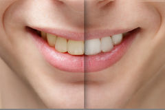 Young man smile before and after teeth whitening Stock Photography