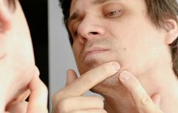 Young man squeezes the pimple on the face in front of the mirror. Closeup man`s face with skin problems. Young man squeezes the pimple on the face in front of royalty free stock images