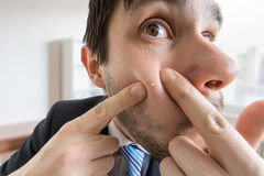 Young man is squeezing pimple or acne on his skin.  royalty free stock photo