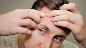 Young man squeezing a pimple. Acne treatment stock photography